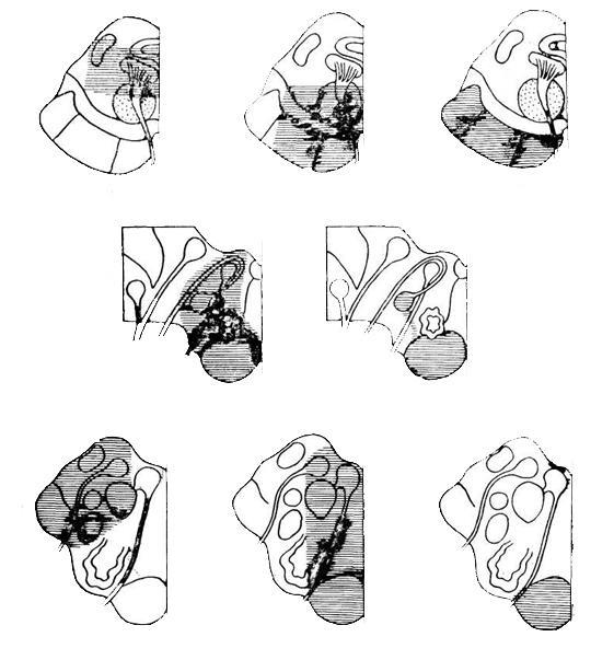 Синдром Оппенгейма фото