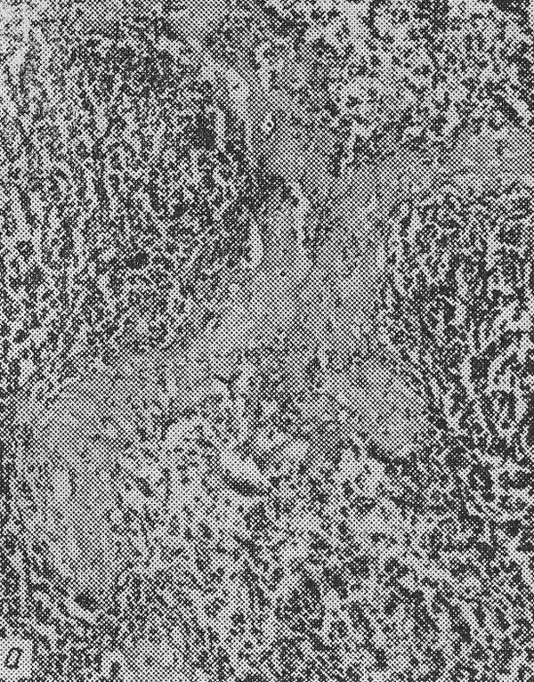 амилоидоз — отложения амилоида в фолликулах селезенки («саговая селезенка»)