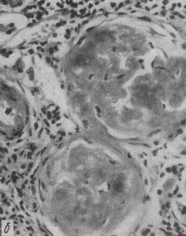 амилоидоз — массы амилоида в сосудистых клубочках почек