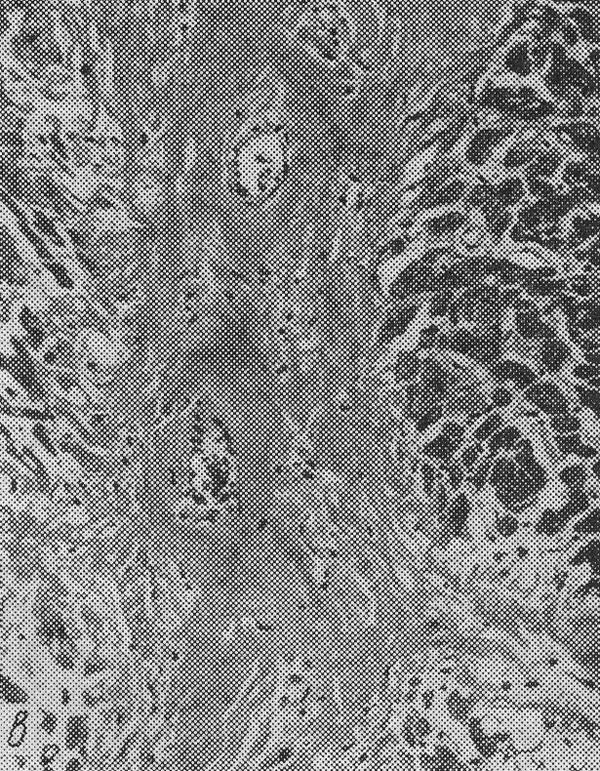 амилоидоз — амилоид между мышечными волокнами сердца