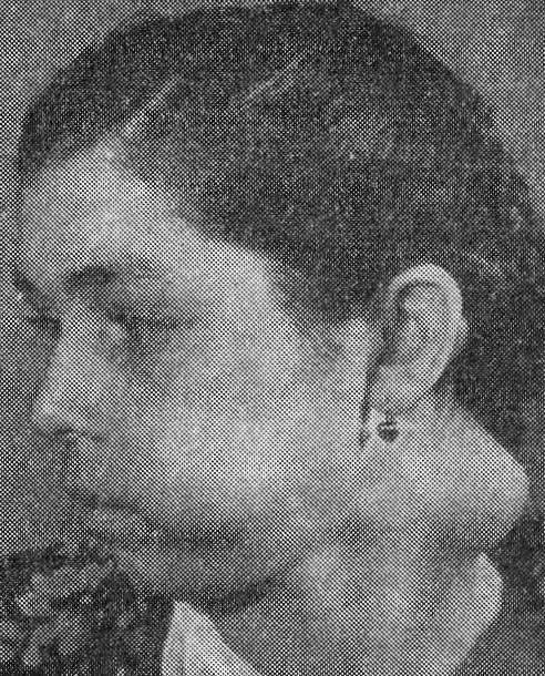 Рак нижней челюсти встречается в 8 раз реже, чем верхней (А. А. Кьяндский и М. М. Костомарова, 1952).