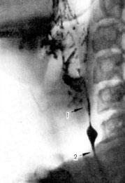 рентгенограмма глоточно-пищеводного перехода