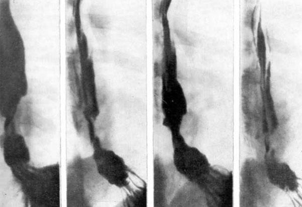фиксированная аксиальная кардиальная грыжа пищеводного отверстия
