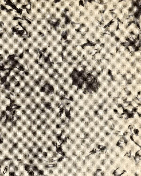Лепрома фото