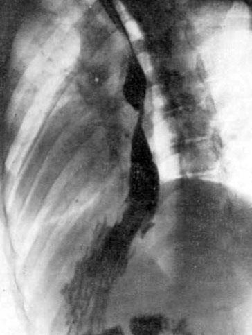 Рентгенограмма врожденного короткого пищевода