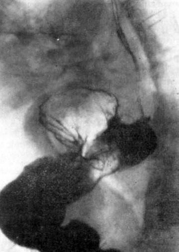 Рентгенограмма пищевода и желудка