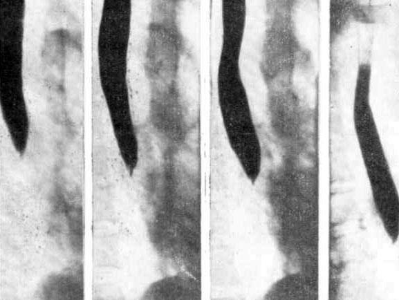 Прицельные рентгенограммы пищевода в правой косой проекции
