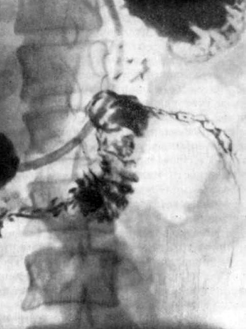 Злокачественные опухоли тонкой кишки