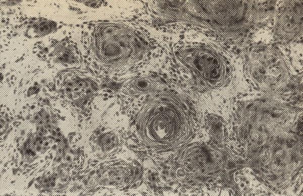 Плоскоклеточный рак с ороговением