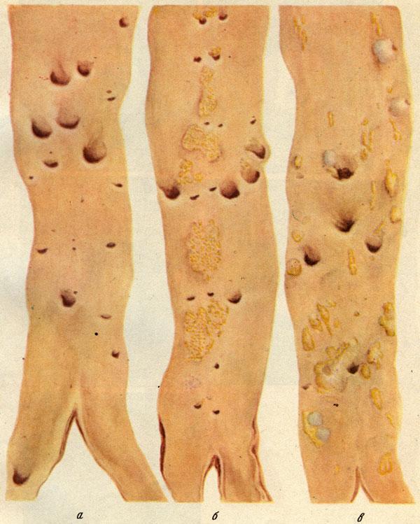 Морфогенез фото
