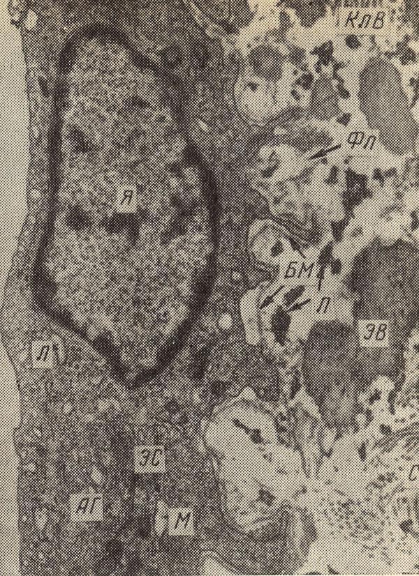 липоидоз фото