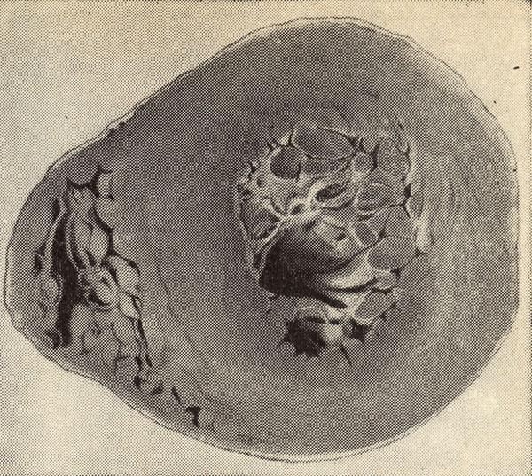 Гипертрофия миокарда левого желудочка при гипертонической болезни
