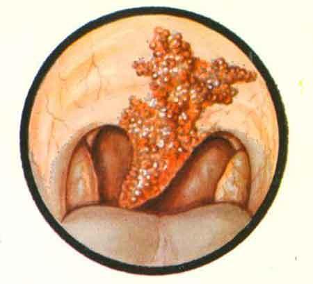 Метастазы в печени лечение в домашних условиях
