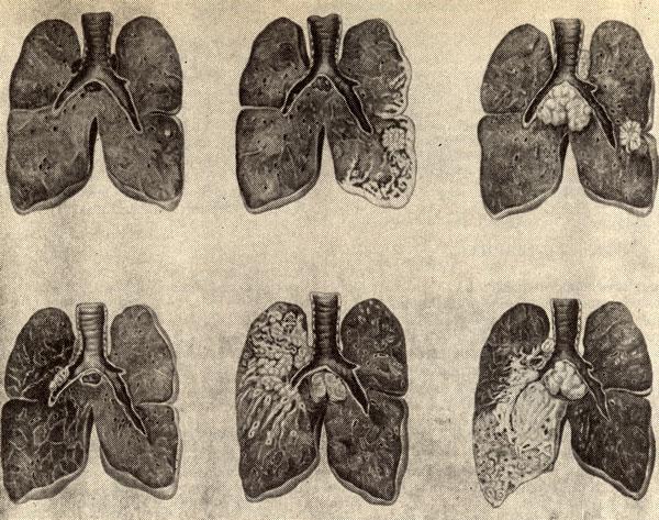 По статистическим данным, рак главного и долевых бронхов наблюдается в 40%, сегментарных - 30%, субсегментарных и их...