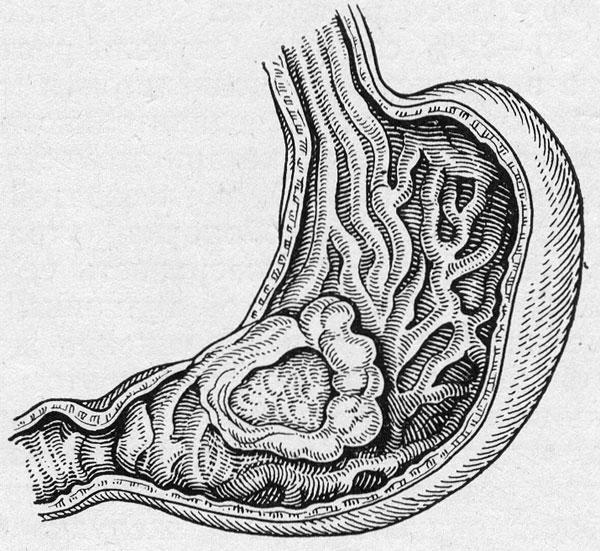На изображении показан рак желудка (по частоте поражения раком органов...