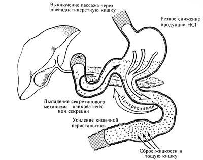 Влияние резекции желудка и