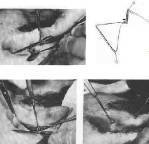 аднексэктомия техника операции