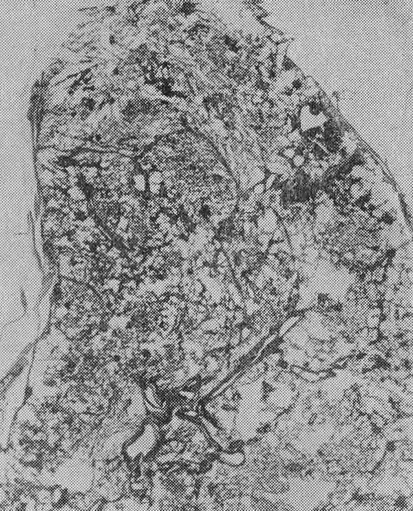 Гематогенный фото