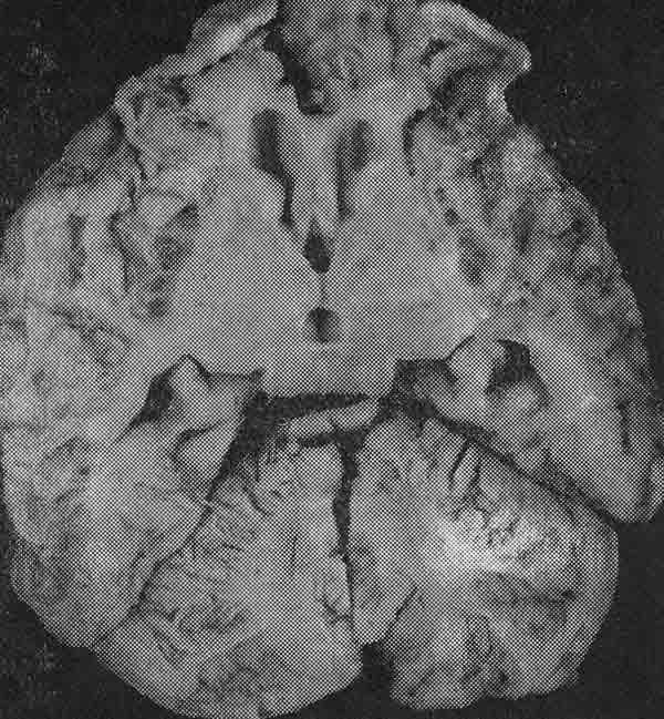 паразиты в головном мозге симптомы фото
