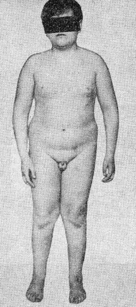 Ответы@: как увеличить грудь (народными средствами. ••• как увеличить грудь (народными средствами, упражнениями) на 2