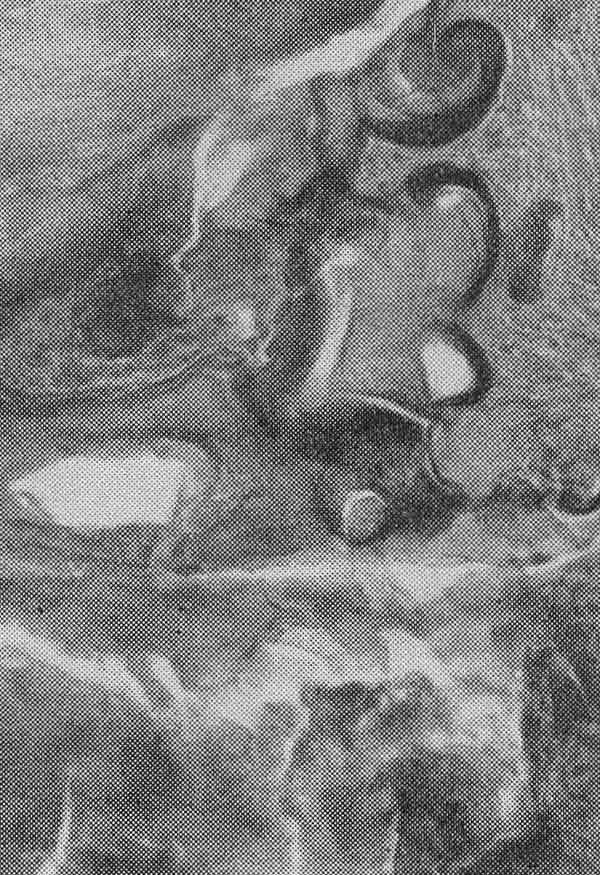 Одонтома