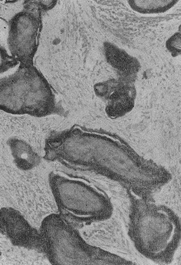 Цементома фото