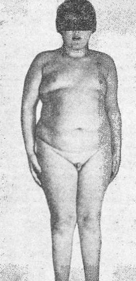Ожирение III степени, на коже живота, бедер и груди - розовые полосы растяж