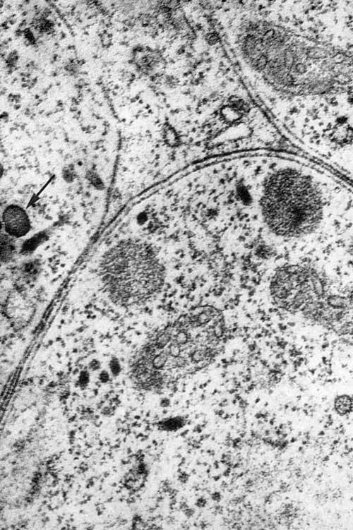 Электронномикроскопическая картина лимфатического узла при экспериментальном токсоплазмозе