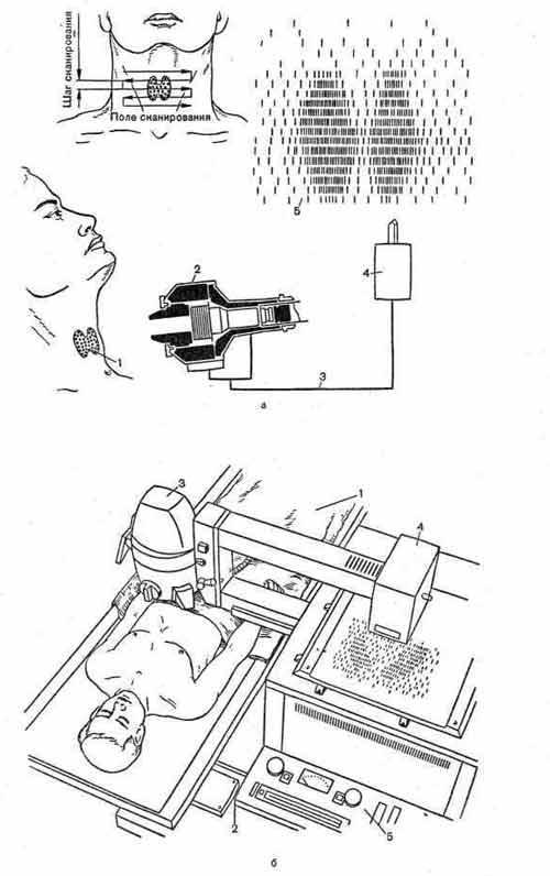 Радионуклидное сканирование