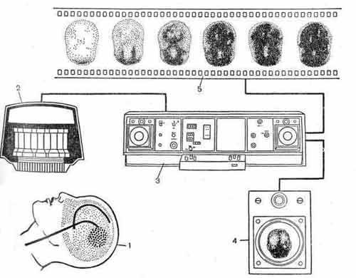 Гамма-камера (принципиальная схема)