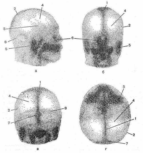 Гамма-топограмма головы в норме