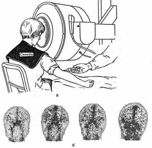 Радионуклидная ангиография сосудов головного мозга после внутривенного введения 99mТс-пертехнетата