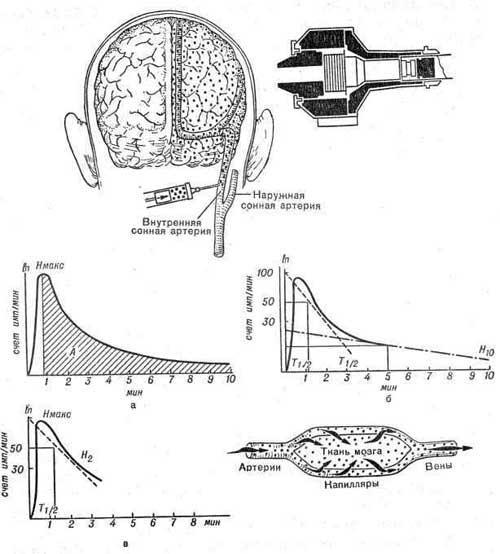 Определение метаболической фазы мозгового кровотока с помощью легко диффундирующих РФП