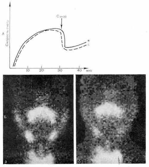 Гамма-хронограмма (А) и гамма-топограммы (Б) слюнных желез у здорового человека