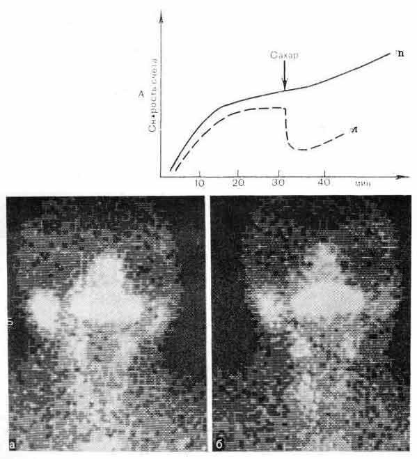 Гамма-хронограмма (А) и гамма-топограммы (Б) слюнных желез при правостороннем хроническом паротите