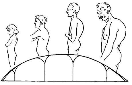 Схематическое изображение перехода от вялой, нефиксированной, к фиксированной круглой спине при юношеском кифозе