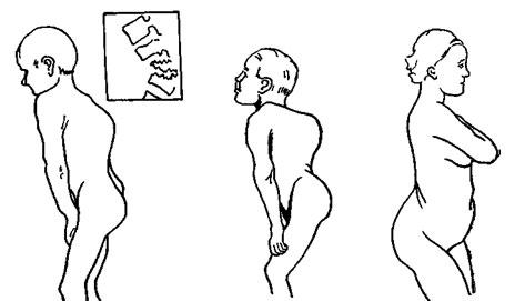 Массаж предстательной железы при аденоме в домашних условиях
