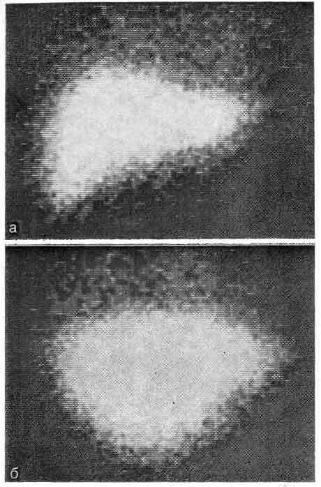 Гамма-топограммы печени с радиоактивным коллоидом в норме
