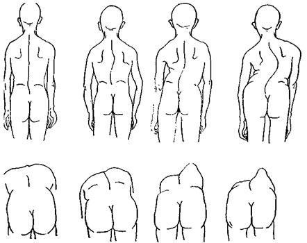 Сколиоз грудного отдела причины