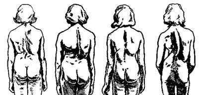Вид со стороны спины четырех больных с одинаковой степенью сколиоза (70°)