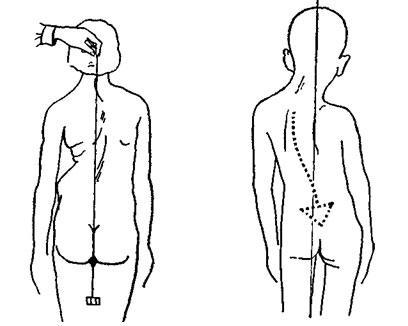 Занятия для спины при сколиозе в тренажерном зале