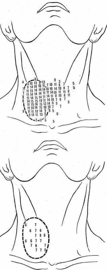 Цифровые гамма-топограммы щитовидной железы