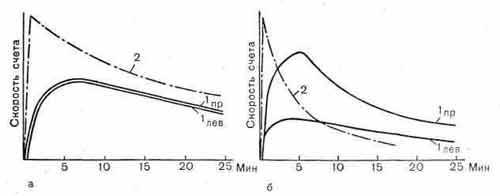 Гамма-хронограммы почек с 131I-гиппураном (а, б)