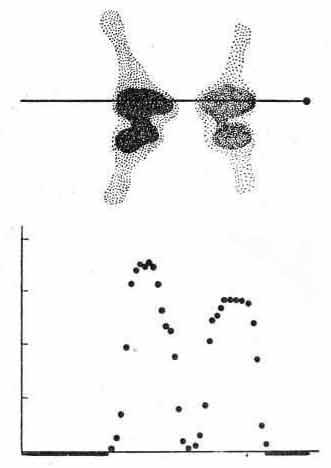 Гамма-топограмма коленных суставов больного ревматоидным артритом
