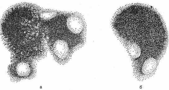 Гамма-топограммы печени после введения радиоактивного коллоида