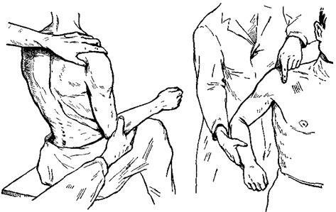 В случае ущемления мягких тканей между вывихнутыми поверхностями ключица...
