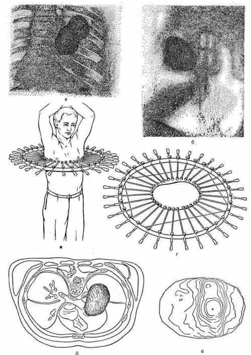 Изготовление эскиза поперечного сечения грудной клетки с помощью копировального приспособления