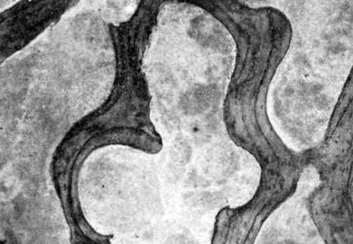 Некроз костных балок в центре творожистого очага костного мозга эпифиза бедра: ранний некроз без резорбции