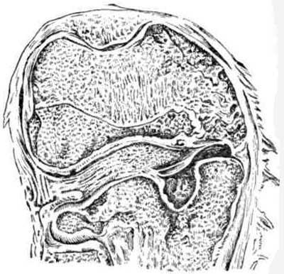 Прорыв в коленный сустав туберкулезного очага большеберцовой кости