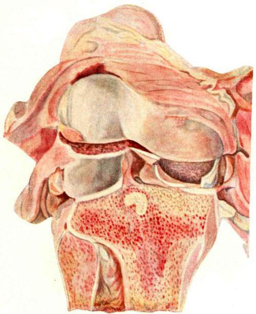 Околосуставной туберкулезный очаг в эпифизе большеберцовой кости
